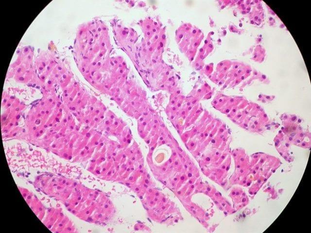 Hepatocellular carcinoma THC cancer drug