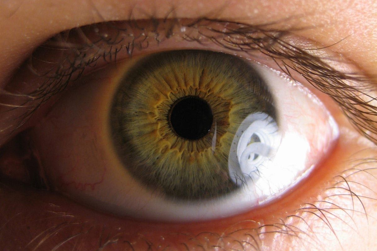 Cannabinol (CBN) the main ingredient in potential treatments for glaucoma and a rare skin disease