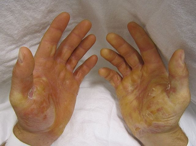CBN treatment - hands with epidermolysis bullosa