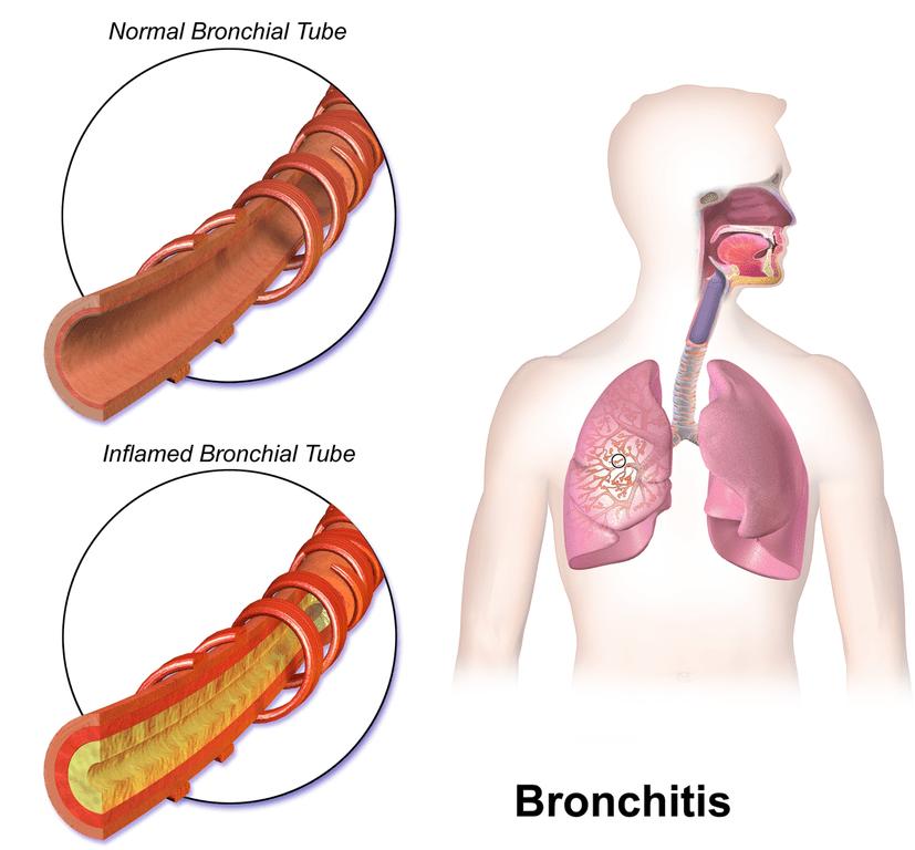 Bronchitis internal diagram