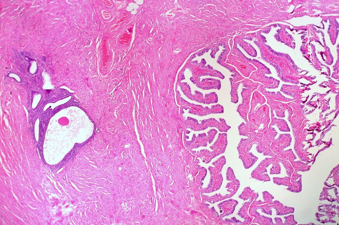 Endometriosis in the fallopian tube